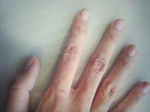 lillfinger fotografering för bildbyråer