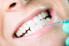 Limpeza dental Fotos de Stock Royalty Free