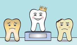 Limpie la concesión blanca de los triunfos del diente Fotografía de archivo