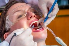 Limpieza de los dientes Fotografía de archivo