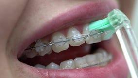 Limpieza de los soportes pacientes de los dientes en clínica dental metrajes