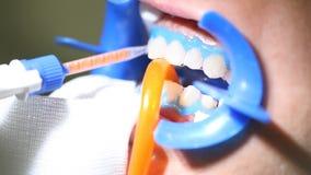 Limpieza dental del dentista, herramientas a blanquear almacen de video