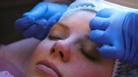 Limpieza mecánica de la cara en el cosmetólogo El Cosmetologist exprime el acné en la frente del paciente con almacen de metraje de vídeo