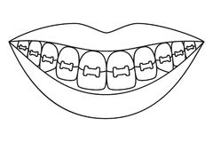 Line art black and white healthy smile in braces vector illustration