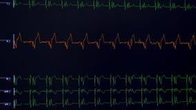 Linee di tassi vitali, frequenza cardiaca che è indicata su uno schermo medico illustrazione di stock