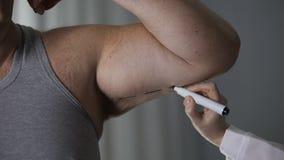 Linha fêmea na pele fraca do braço masculino obeso, cuidados médicos da marcação do cirurgião plástico video estoque