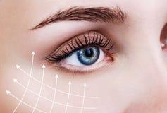 Linhas gráficas que mostram o efeito de levantamento facial na pele imagens de stock royalty free