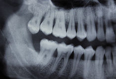 Linke Hälfte des zahnmedizinischen Röntgenstrahls lizenzfreies stockbild