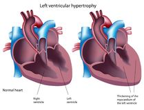 Linker ventriculaire hypertrofie vector illustratie