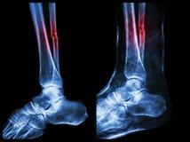 Linkerbeeld: Breukschacht van fibula (kalfsbeen), Juist beeld: Het was splinted met gipsverband stock afbeeldingen