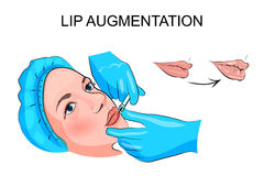 Lip augmentation. injection Stock Photos