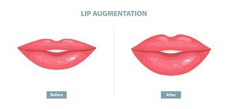 Lip Augmentation. Before and after lip filler injections. Vector. Illustration Royalty Free Stock Images