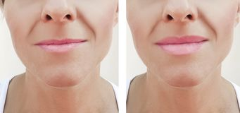 Lip augmentation before and after procedures, filler. Lip augmentation before and after procedures filler stock photography
