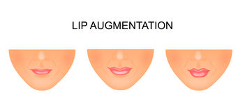 Lip enhancement. before and after the procedure Royalty Free Stock Photos