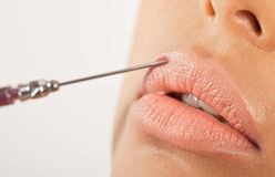 Lip Enhancement Treatment Stock Image