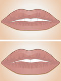 Lip filler before and after Royalty Free Stock Photo