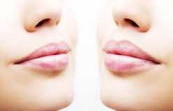Before and after lip filler injections. Close up over white background. Before and after lip filler injections. Close up on white background stock photography