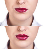Before and after lip filler injections. Fillers. Lip augmentation over white background stock photography