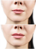 Before and after lip filler injections. Royalty Free Stock Photo