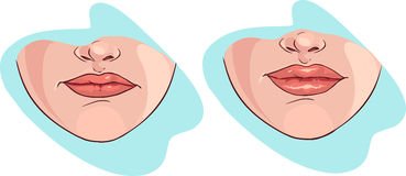 Lip filler Royalty Free Stock Photos