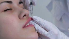 Lip injection plastic surgery. Closeup stock video footage