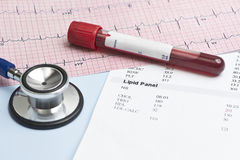 Lipid Panel EKG Royalty Free Stock Photos