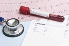 Lipid-Platte EKG Lizenzfreie Stockfotos