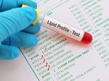 Lipid profile test. Blood sample for lipid profile test royalty free stock photo