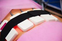 Lipo laser Maskinvarucosmetology kvinna för vatten för brunnsort för hälsa för huvuddelomsorgsfot Non kirurgiskt hugga för kropp  royaltyfria foton