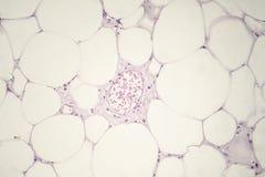 Lipoma, benign growth of fatty tissue. Light micrograph, photo under microscope stock photography