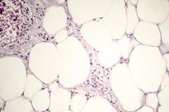 Lipoma, crecimiento benigno del tejido graso imagen de archivo libre de regalías