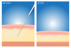 Liposuction before and after Stock Images