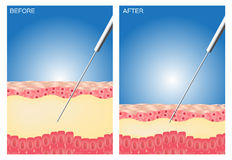 Liposuction before and after , fat , diet , surgery , perfect Liposuction Stock Photo