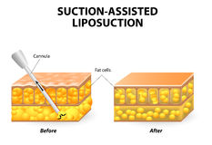 Liposuction Royalty Free Stock Photos