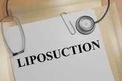 Liposuction - medical concept Stock Image