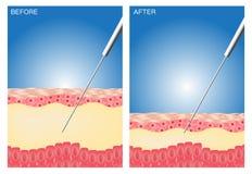 Liposuction vóór en na, vet, dieet, chirurgie, perfecte Liposuction Stock Foto