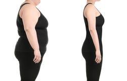Liposuctionoperation för ung kvinna före och efter arkivfoton