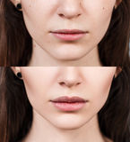 Lippen van jonge vrouw before and after vergroting stock afbeelding