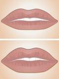Lippenfüller vorher und nachher Lizenzfreies Stockfoto