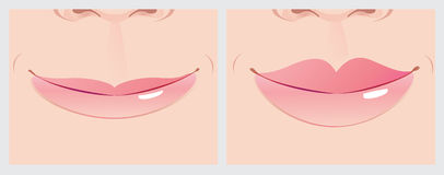 Lippenkorrektur vektor abbildung