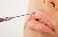 Lippenverbesserungs-Behandlung Stockbild