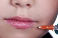 Lippenvergroting Stock Afbeeldingen