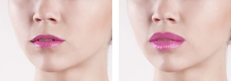 Lips before and after augmentation. Sensual royalty free stock photo