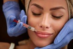 Lips botox Royalty Free Stock Image