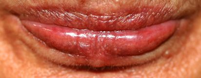 Lips close up. Wrinkles on the lips. Botex of the lips. boteks. Royalty Free Stock Image