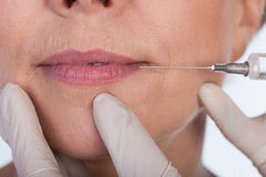 Lips correction using botox Royalty Free Stock Image