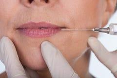 Lips correction using botox. Close-up of lips correction using botox, horizontal Royalty Free Stock Image