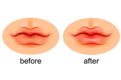 Lips are dry and after moistening Royalty Free Stock Images