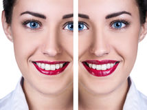 Lips before and after filler injections Royalty Free Stock Photos