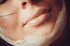 Lips Injections Stock Photos